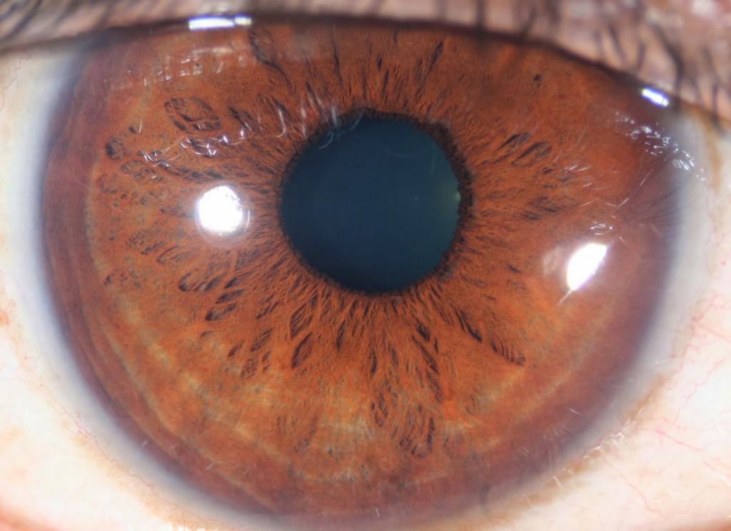 iridología (94)