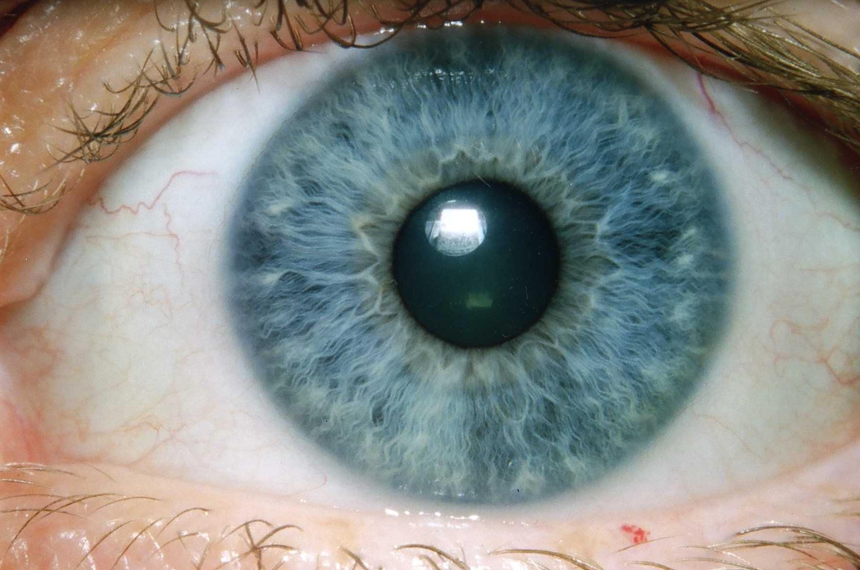 iridología (97)