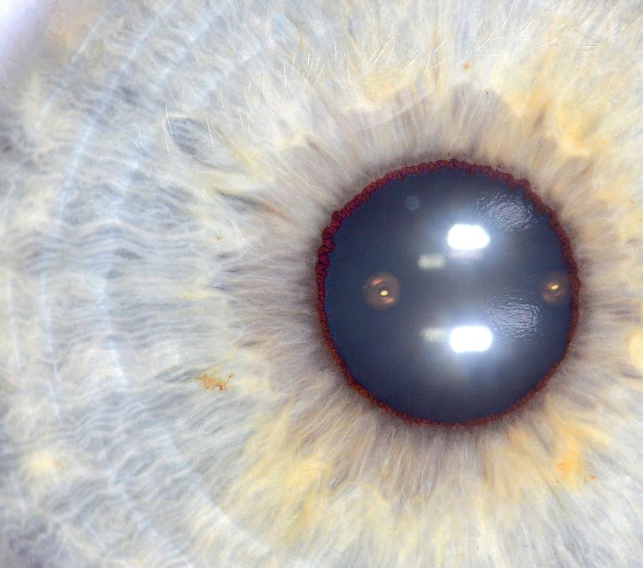 iridology images 1