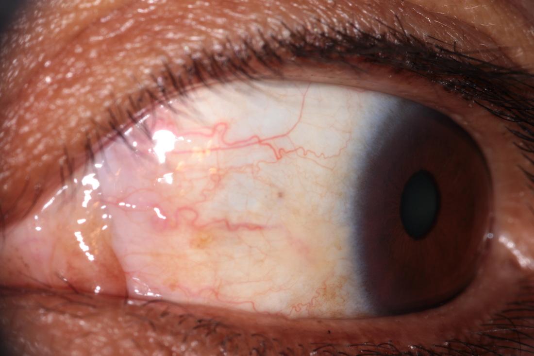 iridology images 12