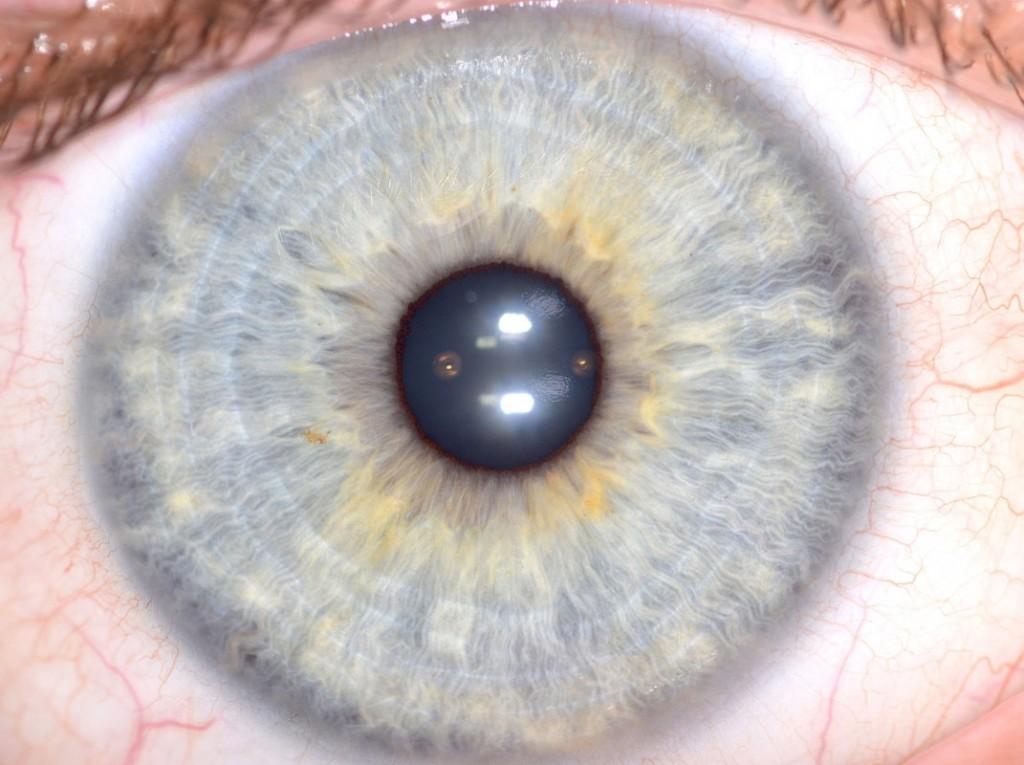 iridology images 2