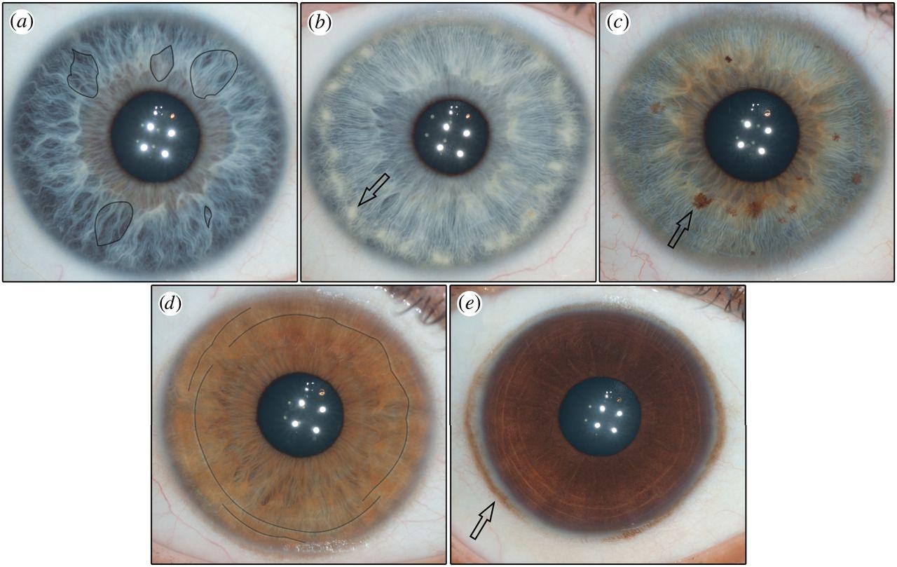 rayid iridology 1