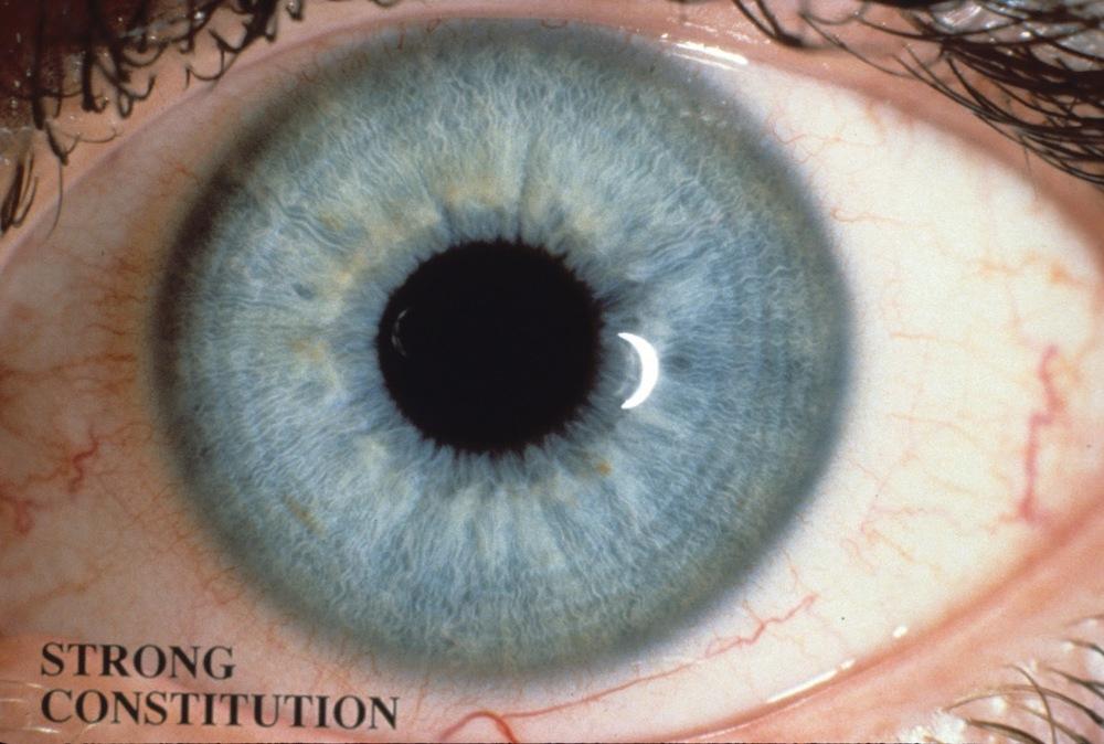 rayid iridology 10