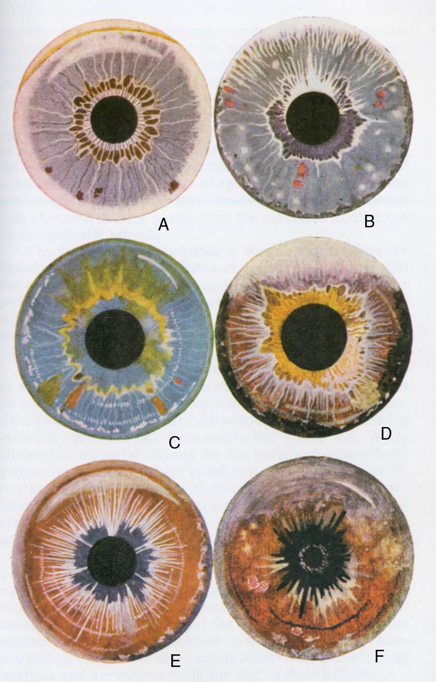 rayid iridology 14