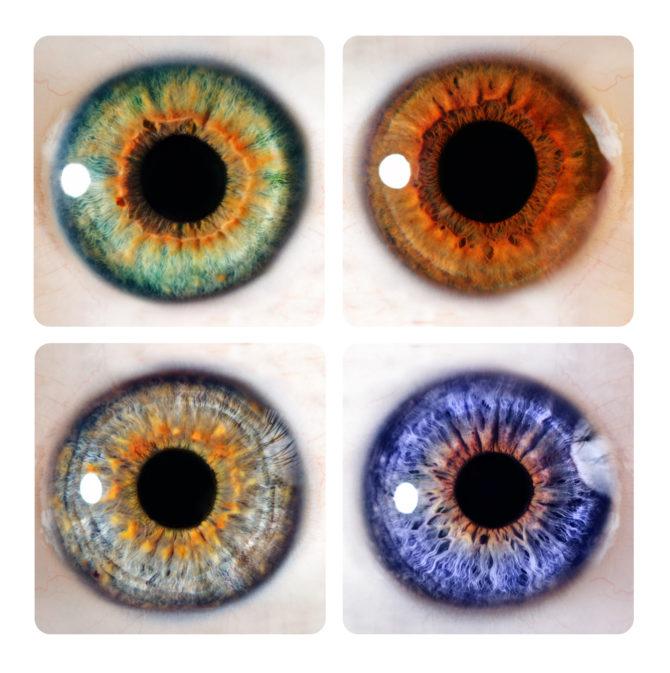 rayid iridology 15