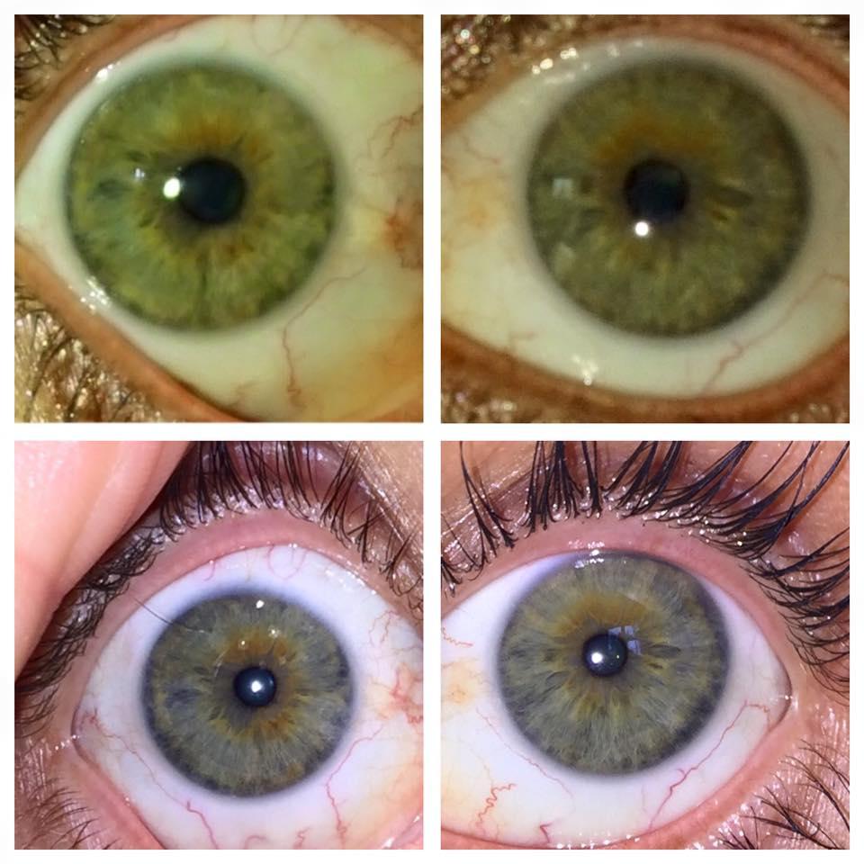 rayid iridology 17