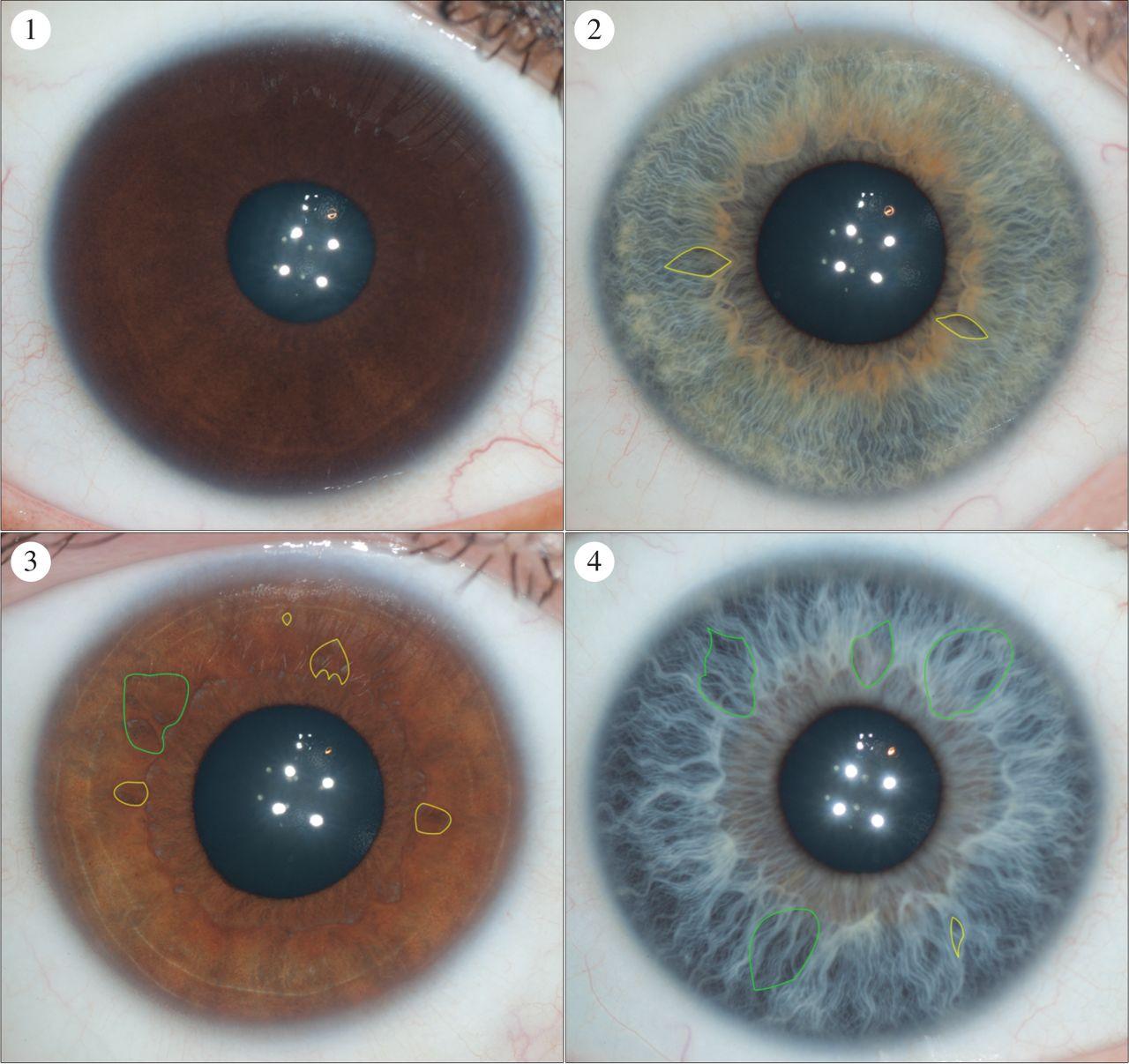 rayid iridology 2