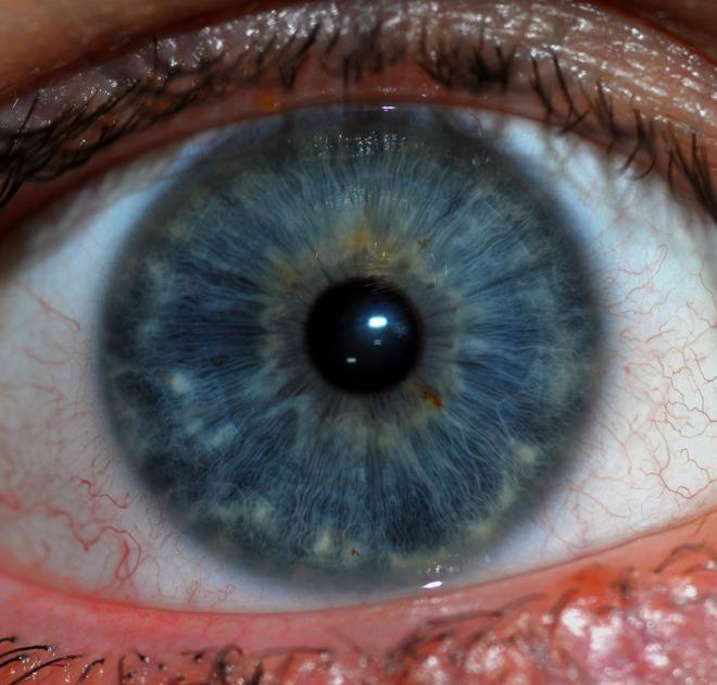 rayid iridology 7