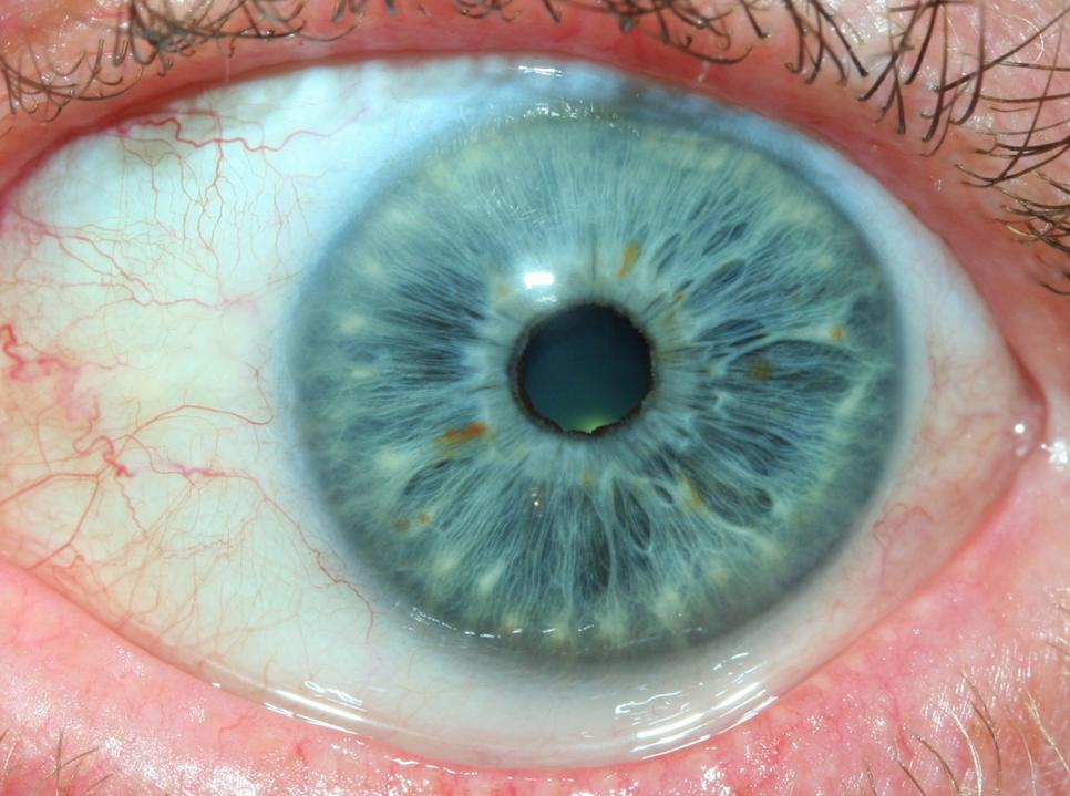 rayid iridology 9