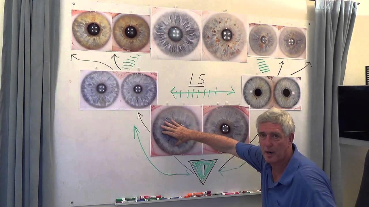 rayid iridology learn