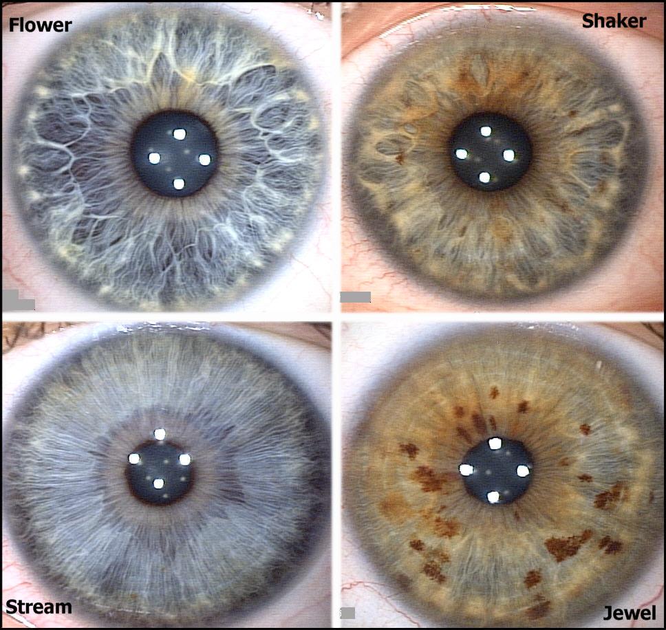 rayid iridology