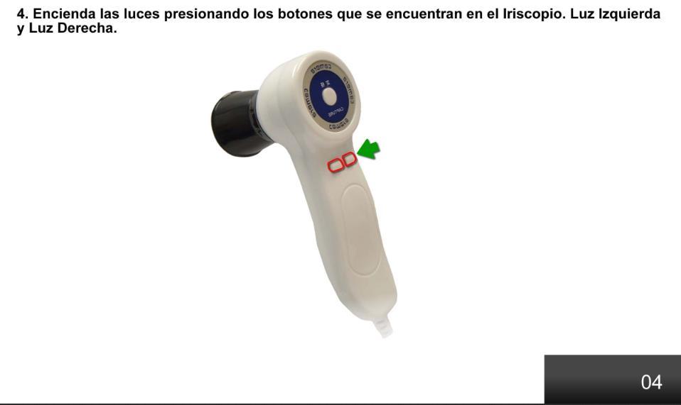 Iriscopio (9)