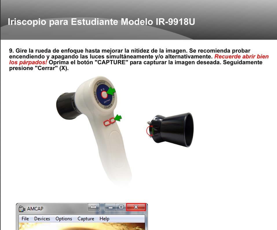 Iriscopio IR-9918U (5)