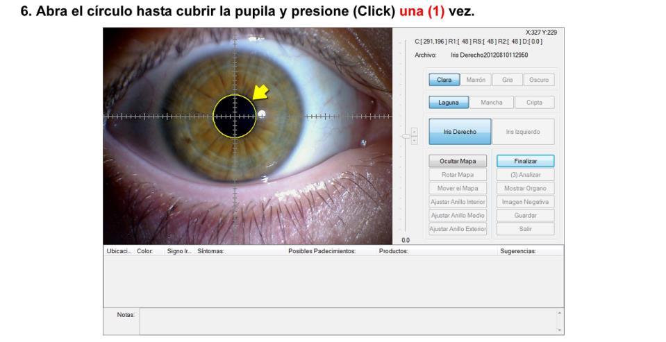 Iriscopio de 12.0 Megapíxeles (Modelo IR-9925U) (37)