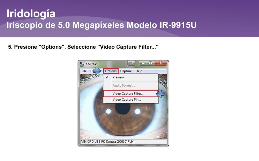 Iriscopio de 5.0 Megapíxeles IR-9915U (10)