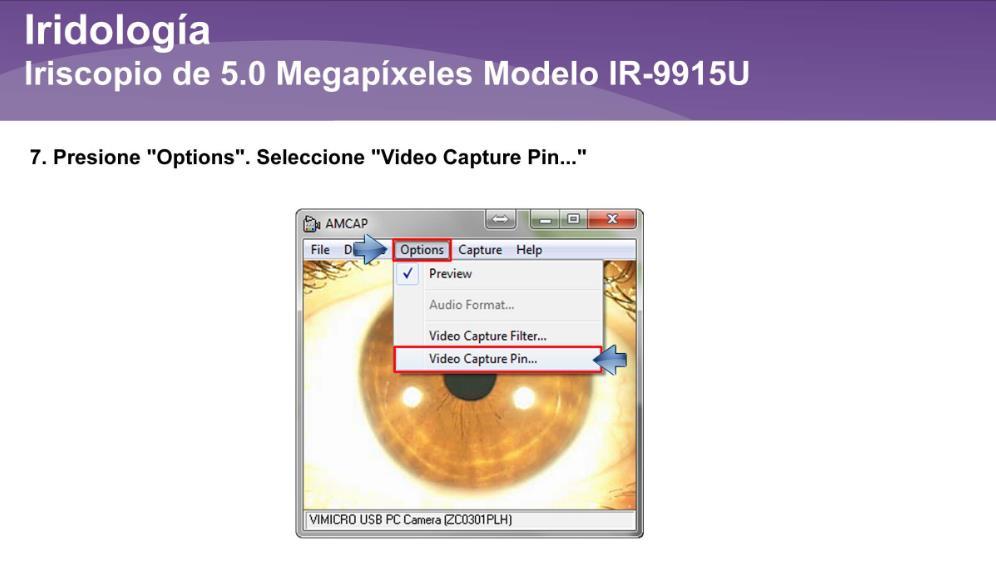 Iriscopio de 5.0 Megapíxeles IR-9915U (12)