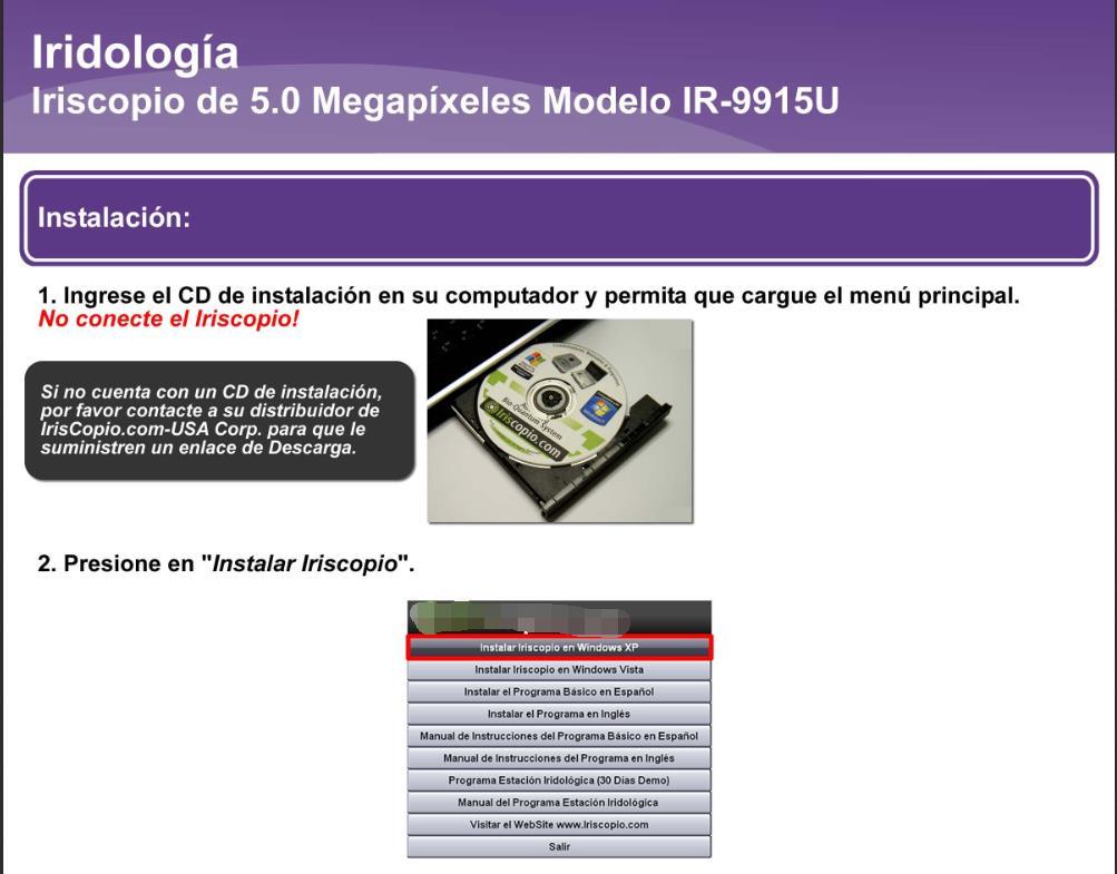 Iriscopio de 5.0 Megapíxeles IR-9915U (2)