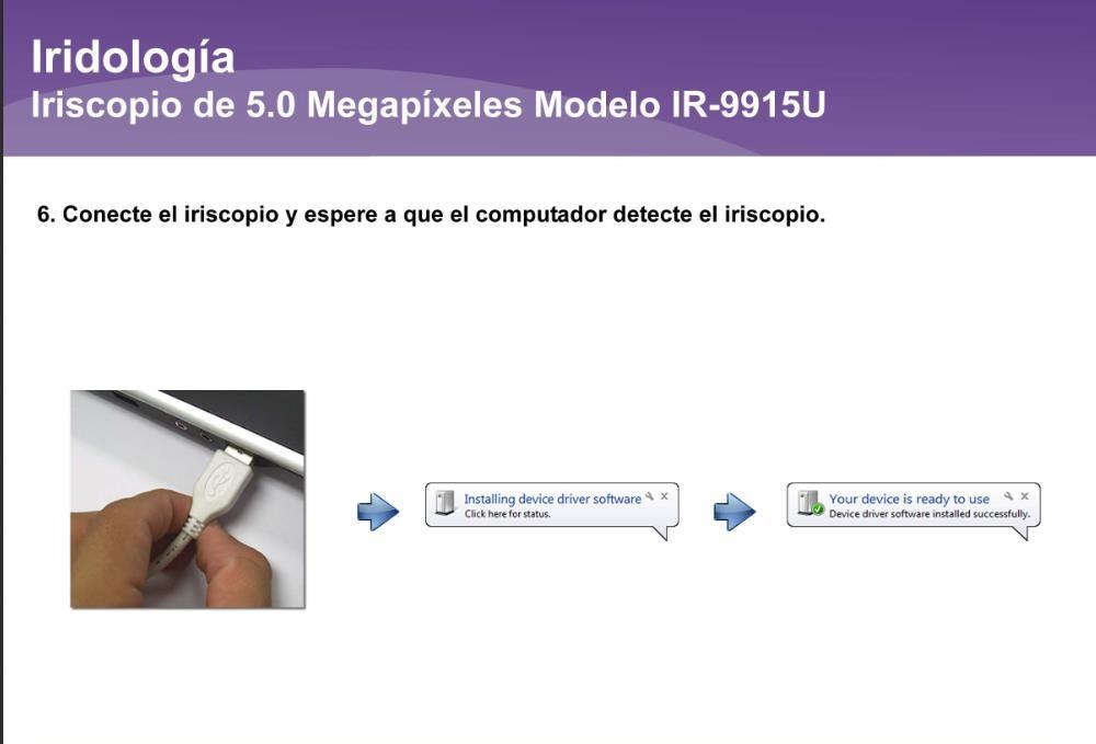Iriscopio de 5.0 Megapíxeles IR-9915U (6)