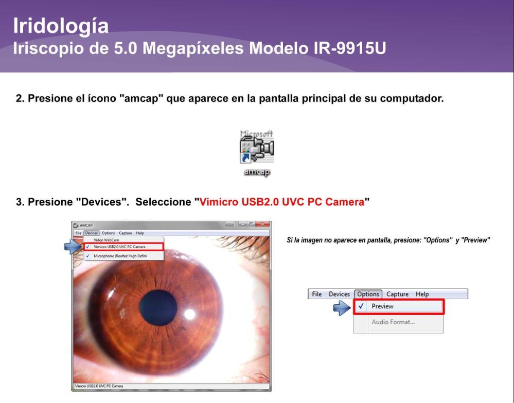 Iriscopio de 5.0 Megapíxeles IR-9915U (8)