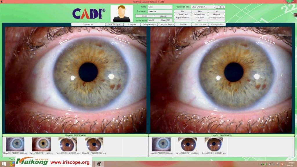 estación de iridología 5.2 software