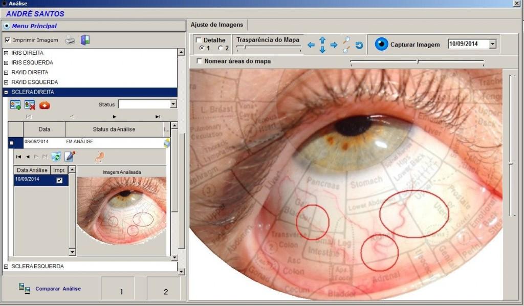 estación de iridología 5.2 software Here's a Quick Way to know 1