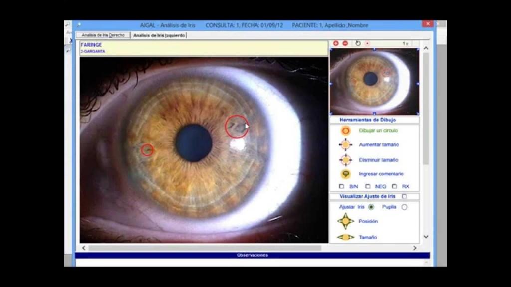 estación de iridología 5.2 software Here's a Quick Way to know 2