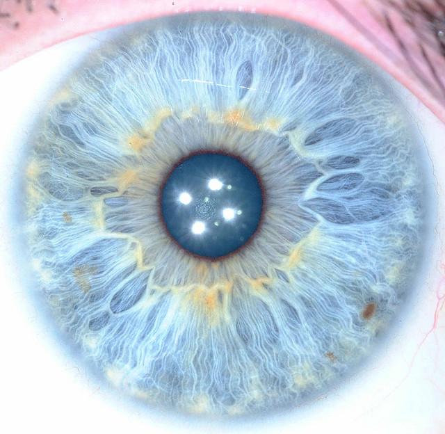 la iridología o estudio del iris