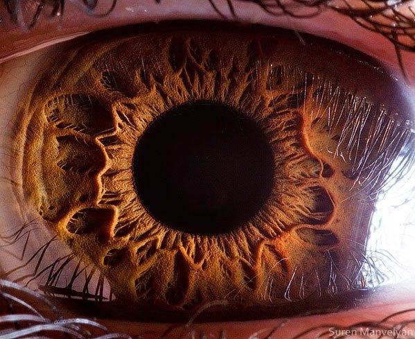 iridology images (1)