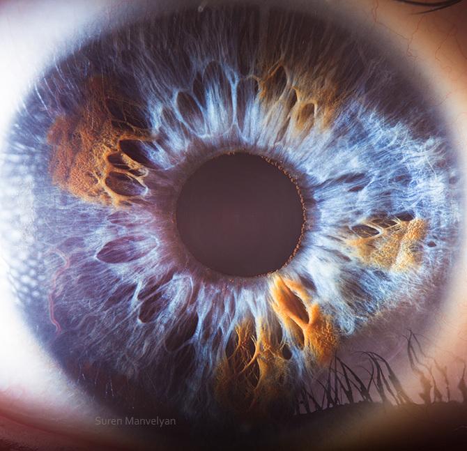 iridology images (11)