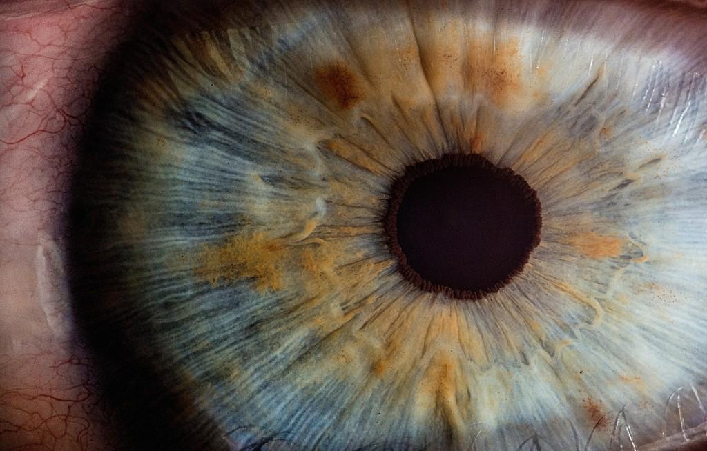 iridology images (13)