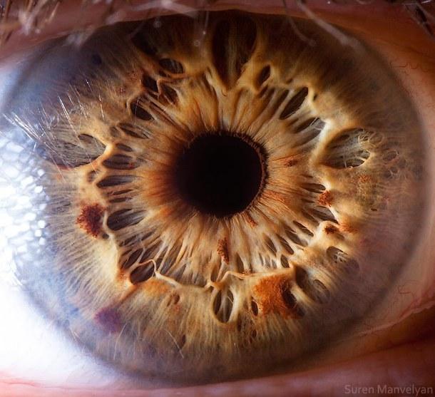 iridology images (6)