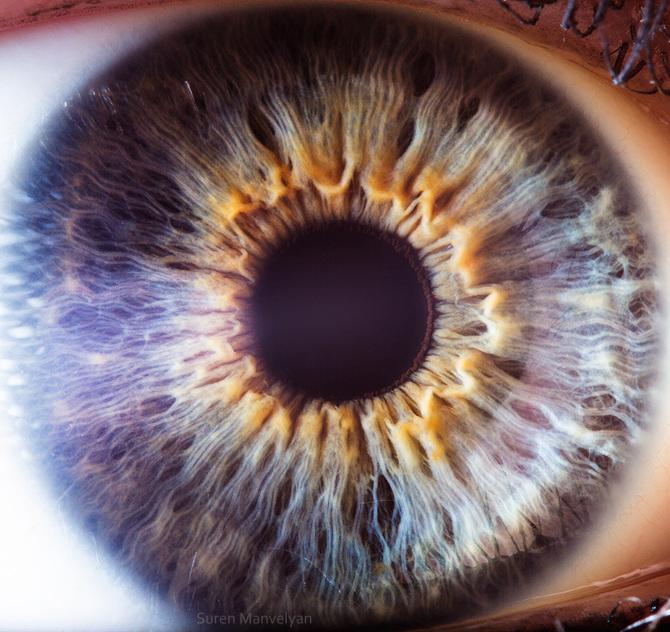 iridology imatgs (18)