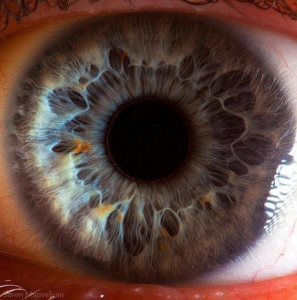 iridology imatgs (19)