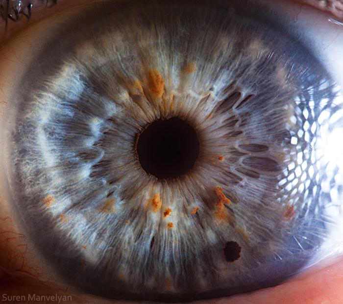 iridology imatgs (20)