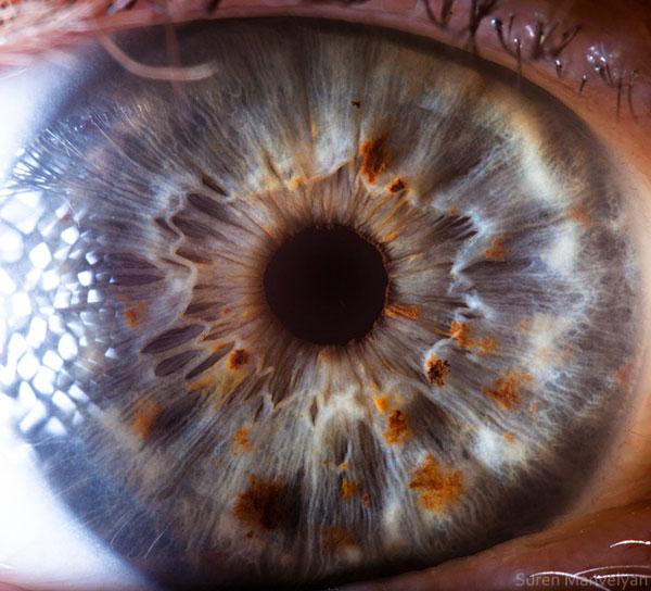 iridology imatgs (23)