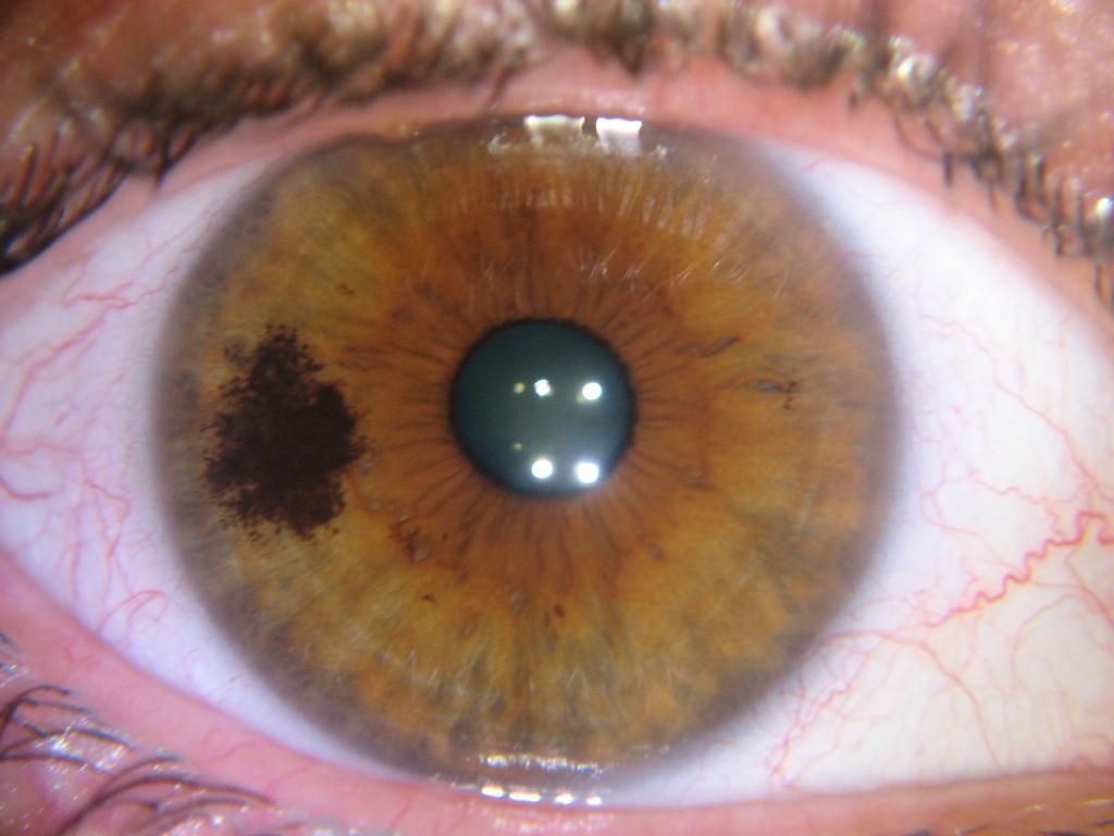 iridology zones dark spot kidney