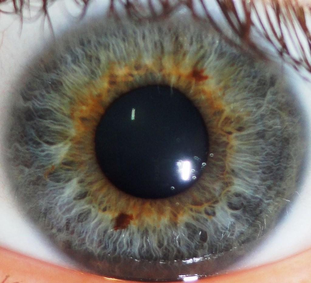 spots iridology camera up the urethra Why iridology have Black 2