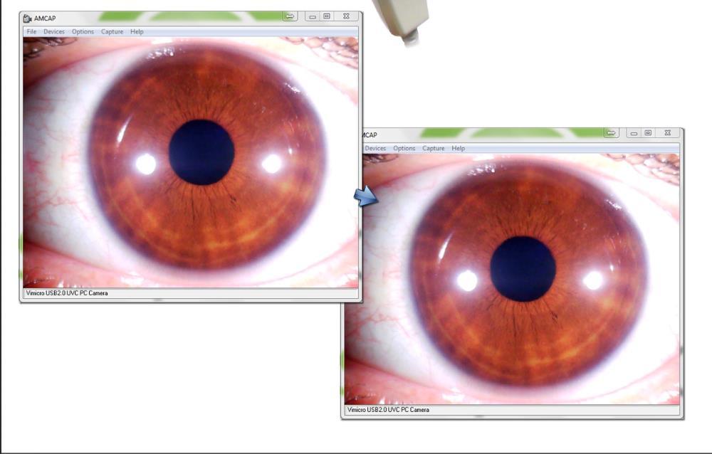 iridology camera 7 san jose