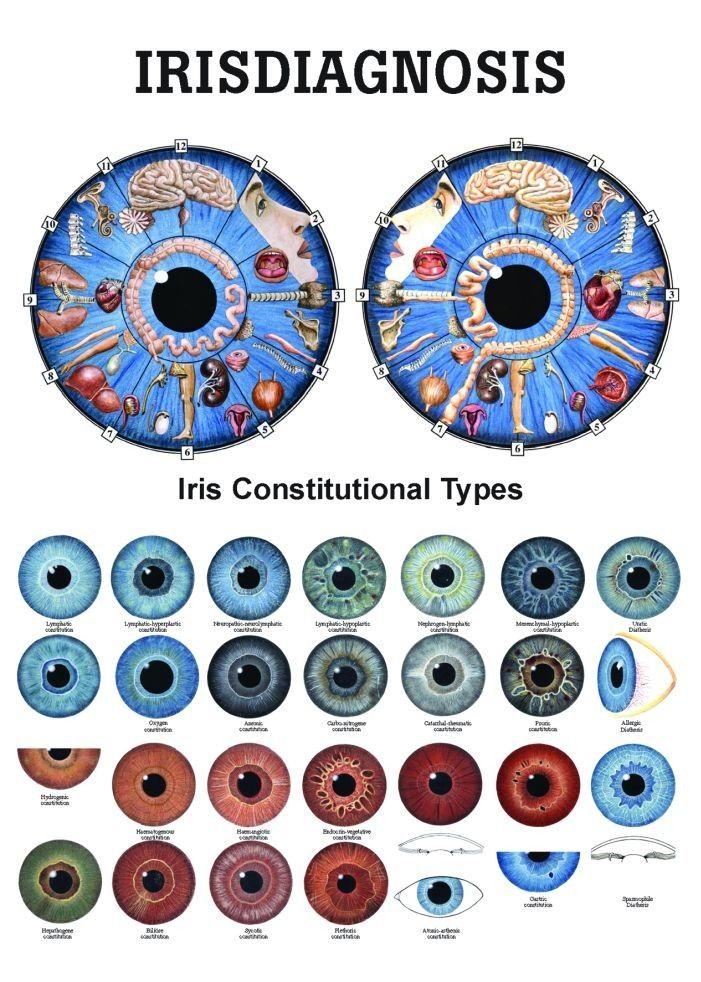 iridology eye chart diagnosis