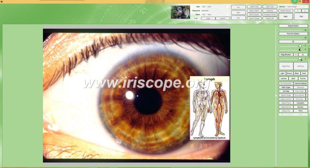 iridology analysis software