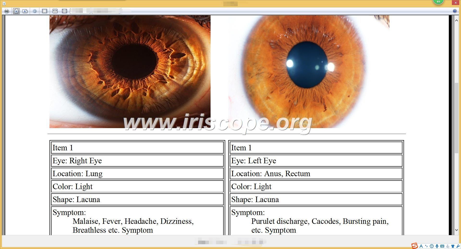 iridology analysis reports