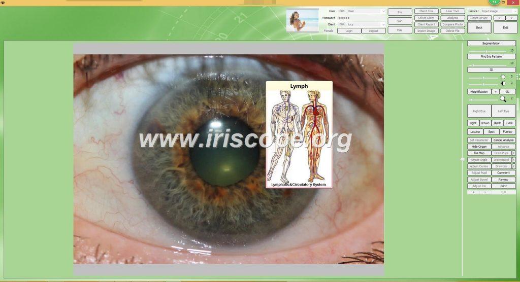 iridology software test reports