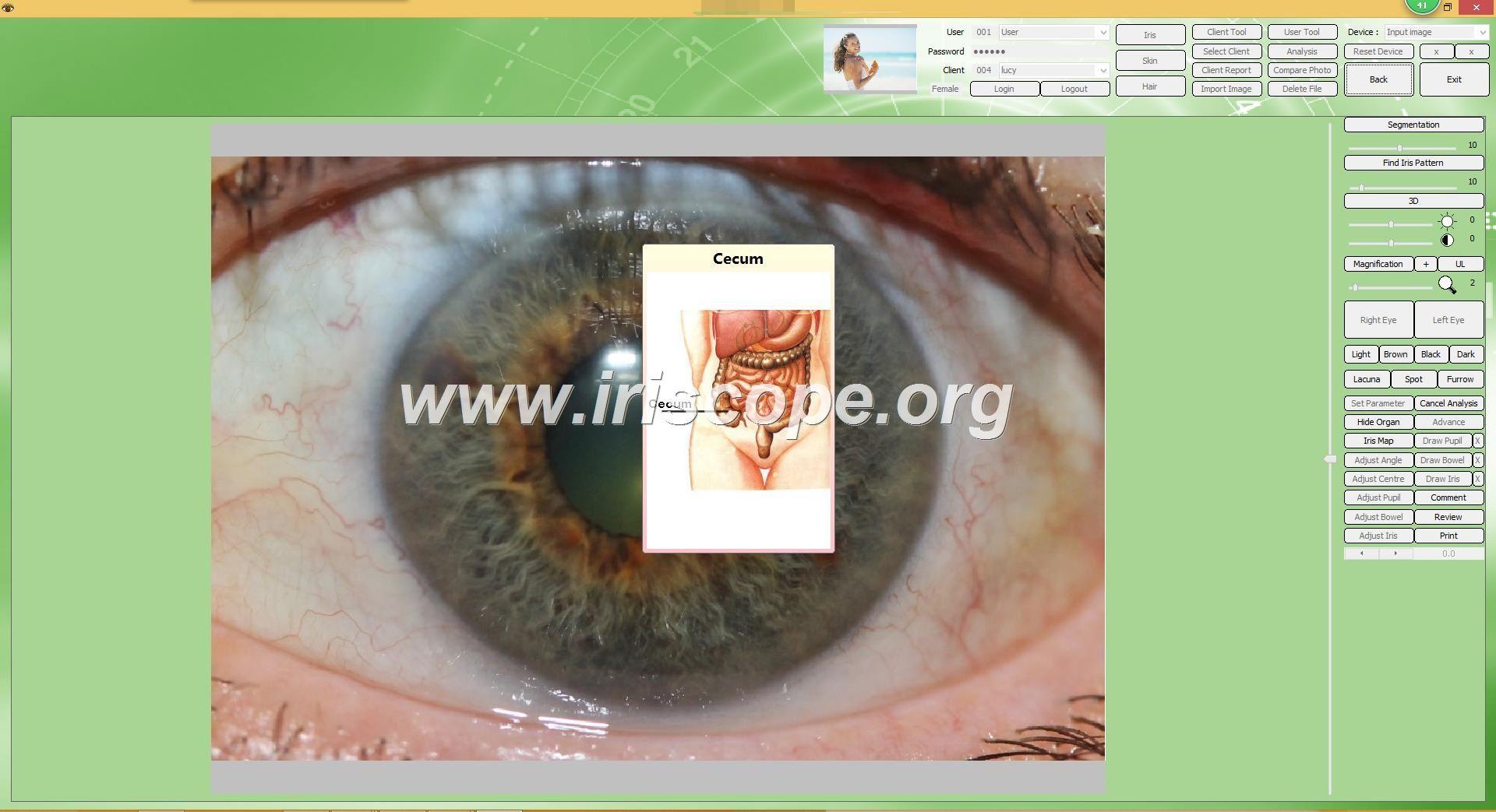 iridology station download