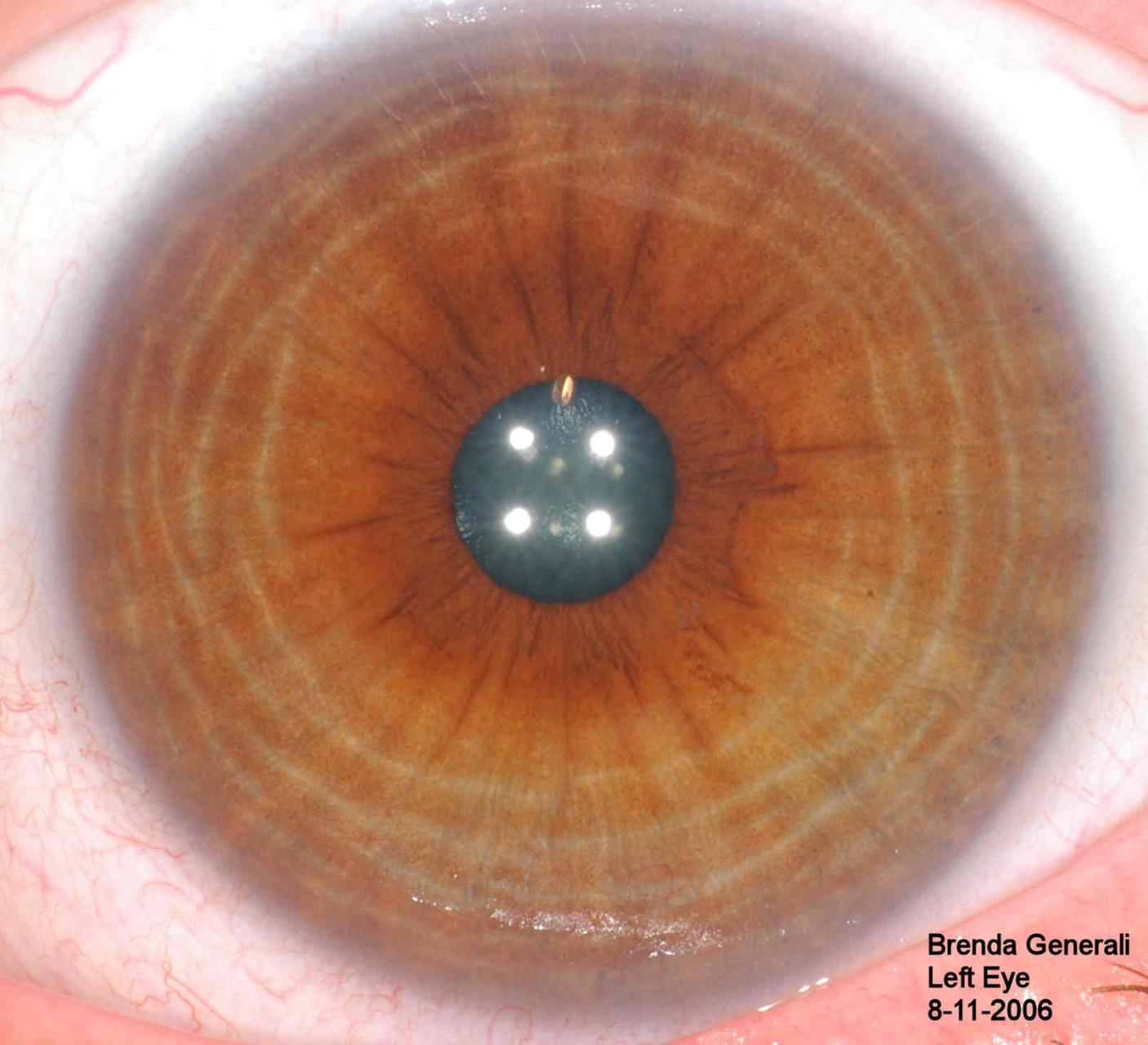 Iridology Diagnosis Chart 10 Pc Free Downlaod Iriscope