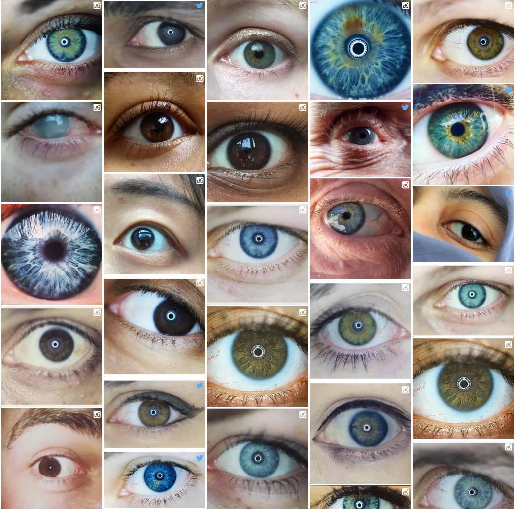 What is iris color chart iriscope iridology camera iriscope iris color chart nvjuhfo Gallery