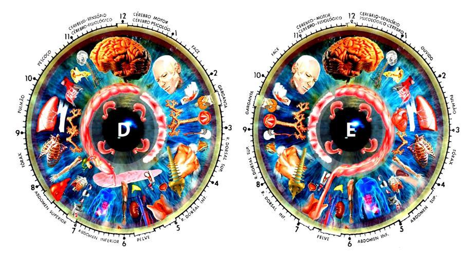 iridology diagnosis chart 10 pc free downlaod