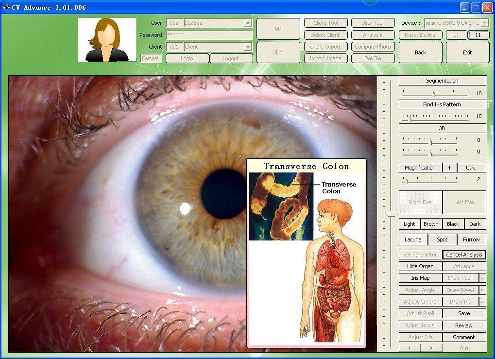 cadi iridology software