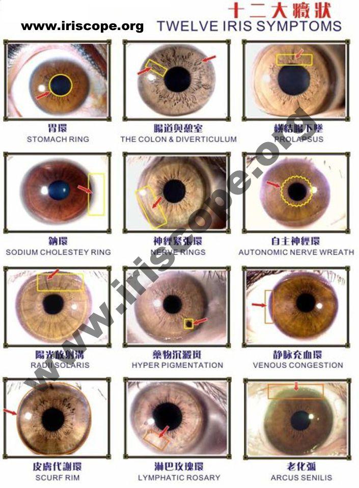 jensen iridology chart