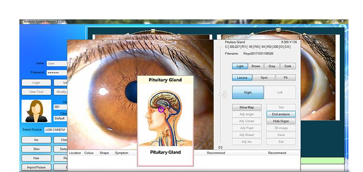 iriscope iridology camera