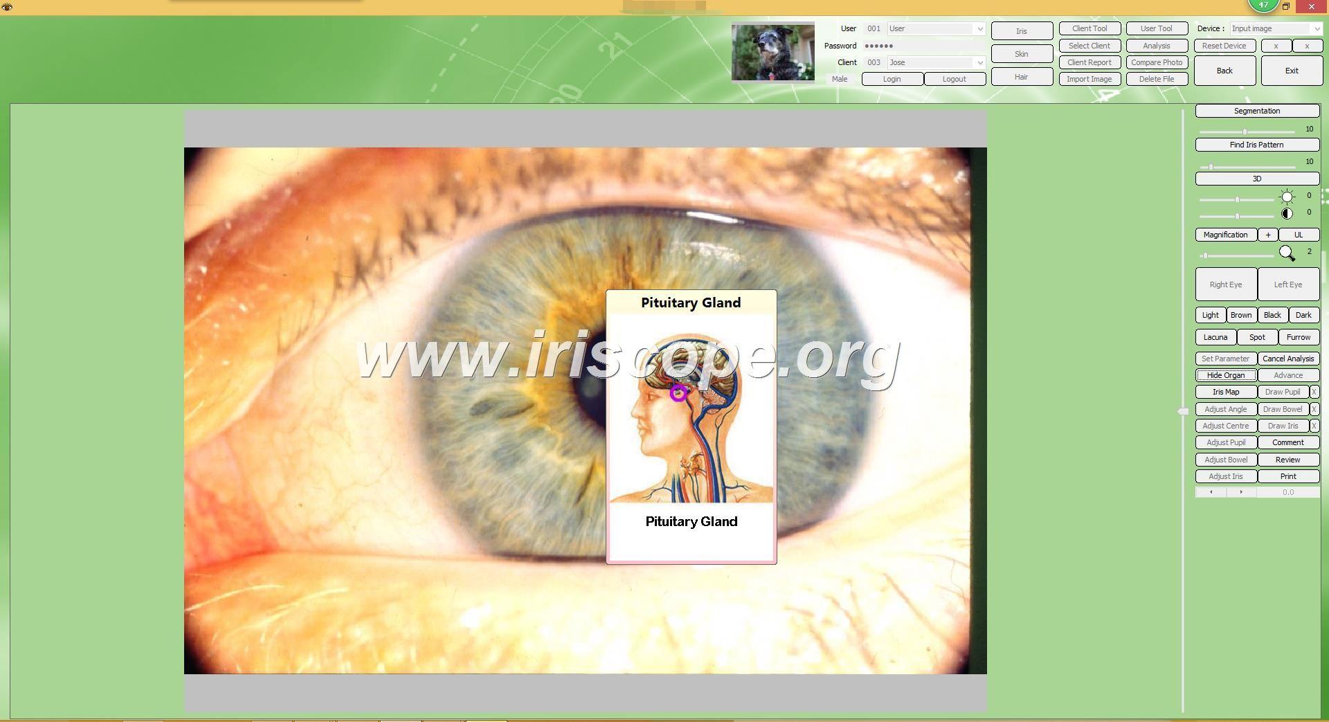digital iriscope supplier